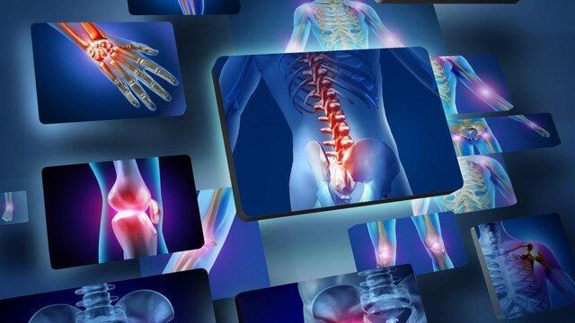 استفاده از داروی سرطان برای بیماری های التهابی