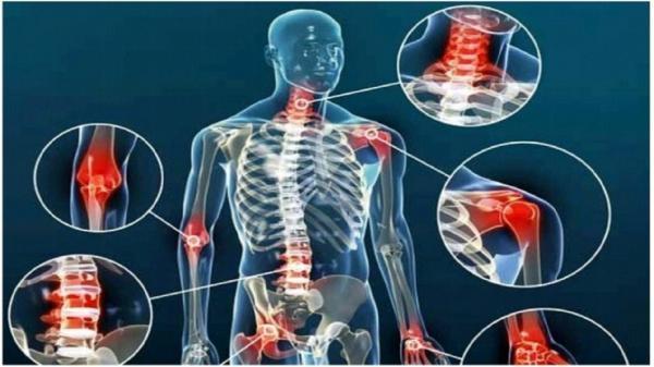 درمان بیماری آرتروز با یک رژیم غذایی ساده